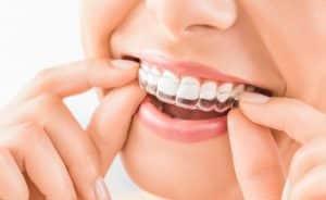 dental cosmetic invisalign