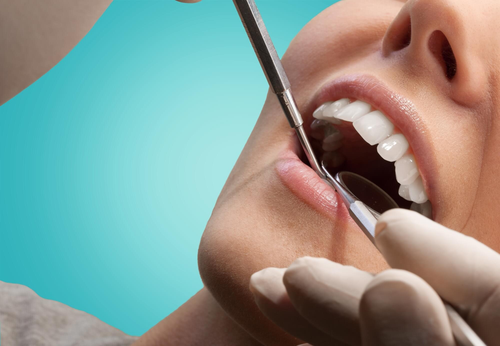 dentist checking mouth