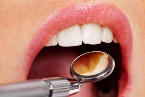 where is the best oak park dentist?
