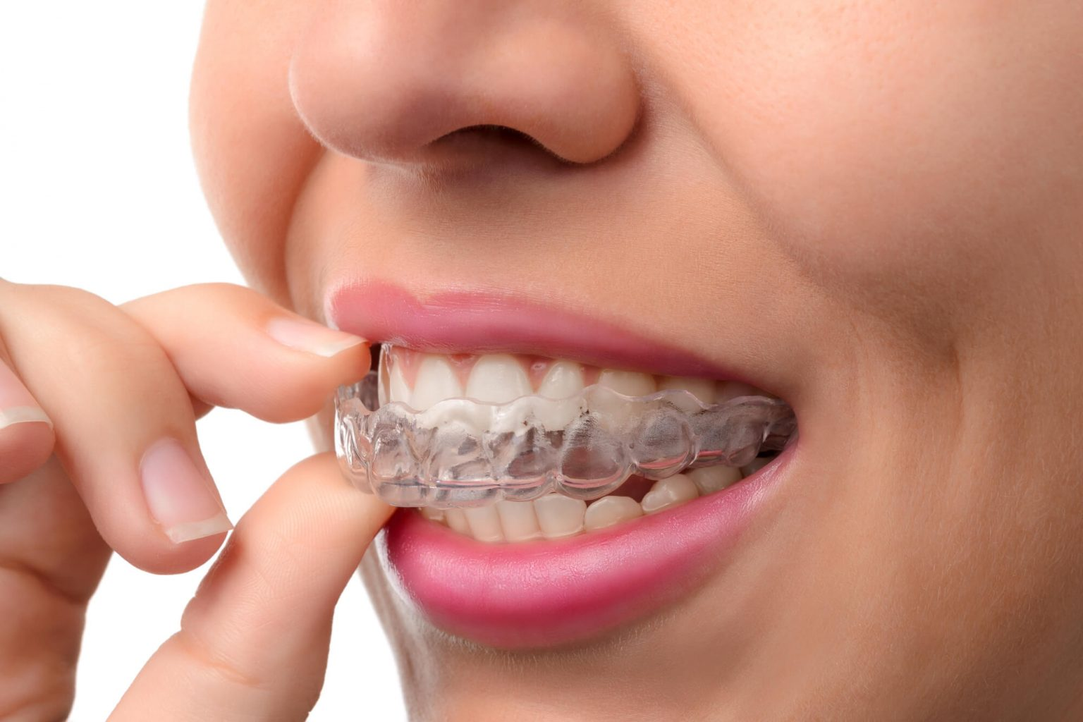 Where can I get Invisalign Oak Park?