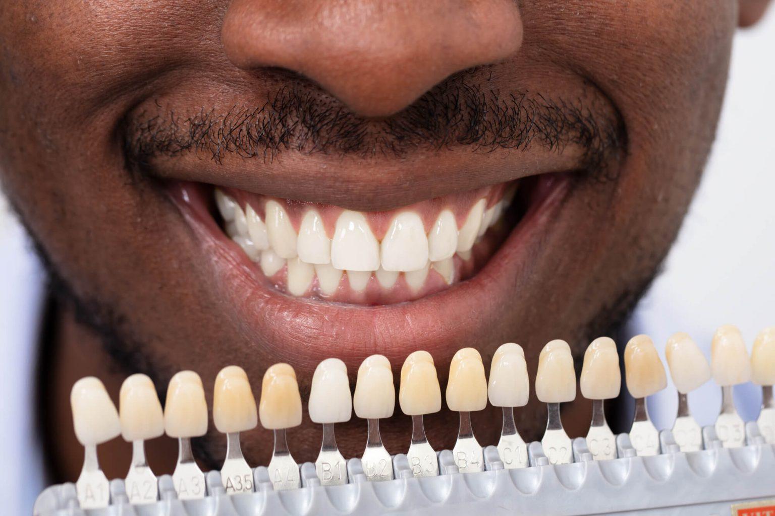Where can I get Dental Implants Oak Park?